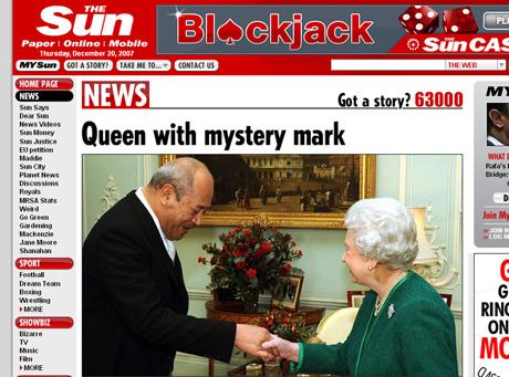 Skąd królowa ma taki wielki siniak?